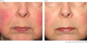beaforeafter1-rosacea-courtesy-of-gilly-munavalli-m-d