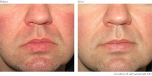 beaforeafter2-rosacea-courtesy-of-gilly-munavalli-m-d