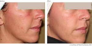 beforeafter1-photorejuvenation-courtesy-of-mariela-nazar-m-d