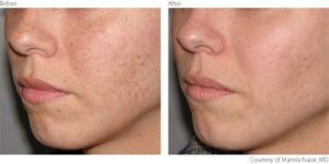 beforeafter1-pigmentation-freckles-courtesy-of-mariela-nazar-m-d