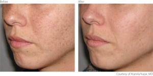 beforeafter1-pigmentation-freckles-courtesy-of-mariela-nazar-m-d