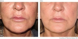 beforeafter2-photorejuvenation-courtesy-of-mariela-nazar-m-d