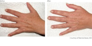 beforeafter2-pigmentation-hands-courtesy-of-mariela-nazar-m-d